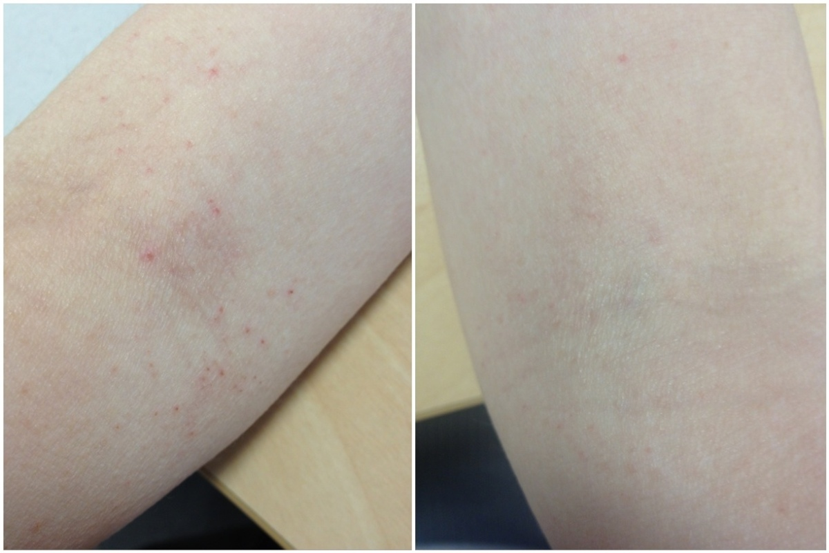 My Eczema and How I Deal With It